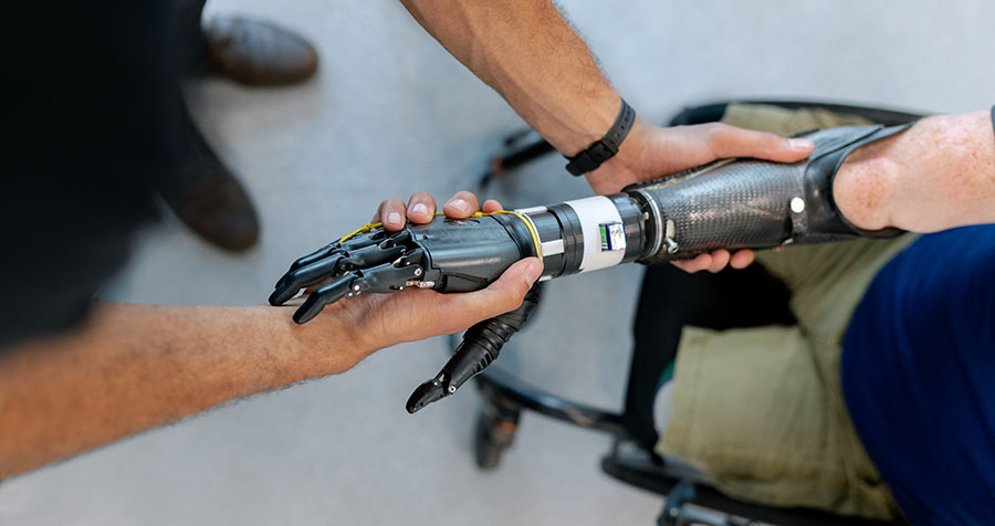 Fitting an prosthetic arm